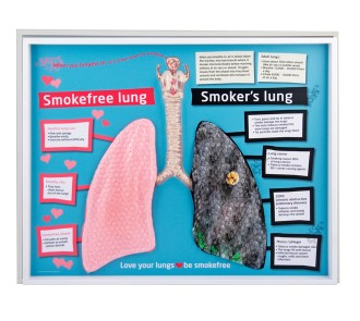 Smokefree and Smoker's Lung